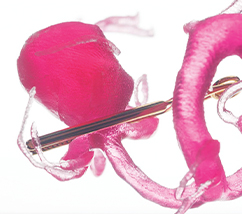 A pink 3D printed anatomic model of an aneurysm